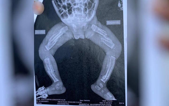 Bebê é internada com 12 fraturas em estado gravíssimo; pais do MA foram presos