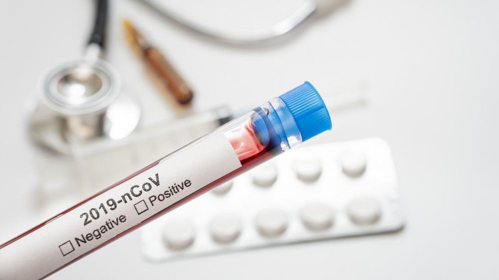 Prefeitura esclarece motivos de não fornecer dados pessoais dos pacientes diagnosticados com a Covid-19