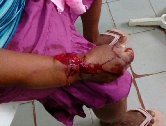 Idosa é atingida a golpes de faca após tentativa de assalto em Agricolândia