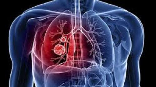 Piauí possui 831 casos de tuberculose diagnosticados