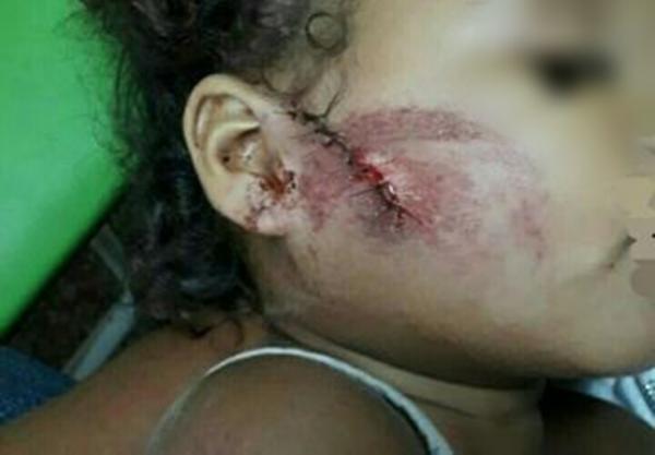 Piauí: criança de um ano leva oito pontos no rosto após ser atingida por uma pedrada