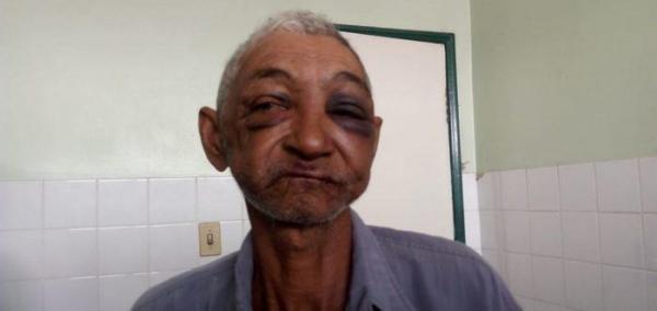 Idoso de 70 anos é violetamente espancado pelo próprio neto no PI