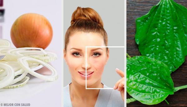 Como remover manchas do rosto com produtos naturais