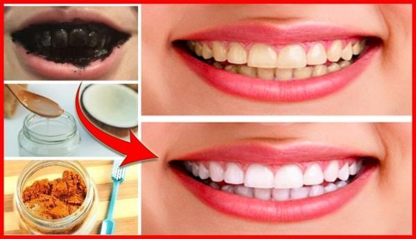 10 Dicas de Como Clarear os Dentes!