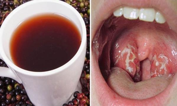 Como se Livrar da Infecção na Garganta Naturalmente em Apenas 4 Horas