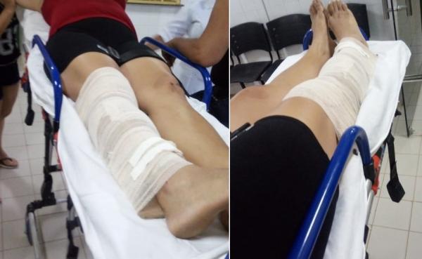 Em Agricolândia, criminosos invadem residência e dona de casa sofre fratura na perna ao pular janela para pedir socorro