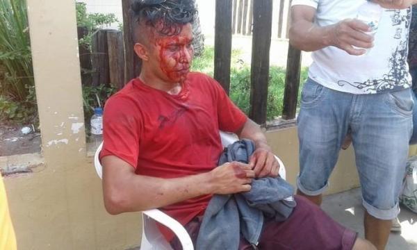Estudante é assaltado e leva pedrada quando ia fazer prova do Enem