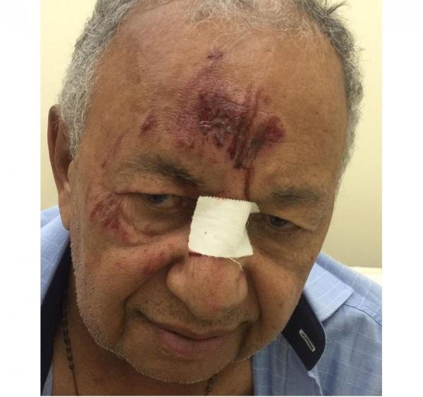 Dr. Pessoa fica ferido após ser atropelado na zona rural de Teresina
